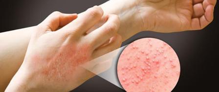 Аллергия - последствие использования кокосовых матрасов