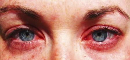 Заболевания глаз и лечение