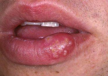Герпес на губах, фото