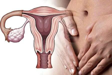 Воспаления внутренних половых органов у женщин