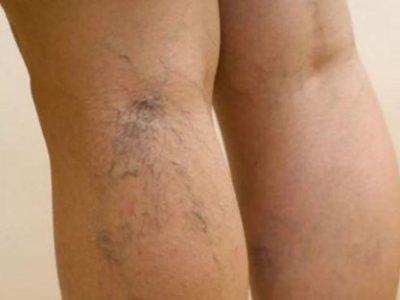 Варикозное расширение вен на ногах, фото