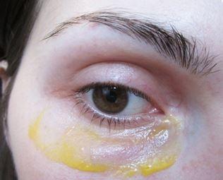 Как убрать отеки под глазами