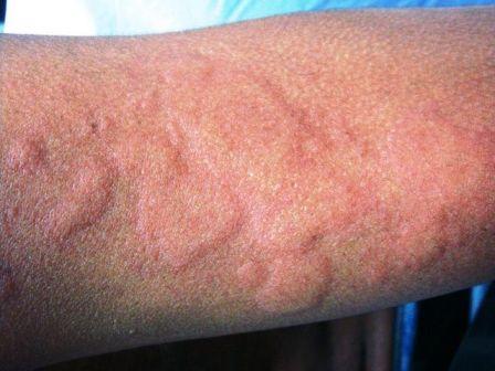 Крапивница: симптомы у детей