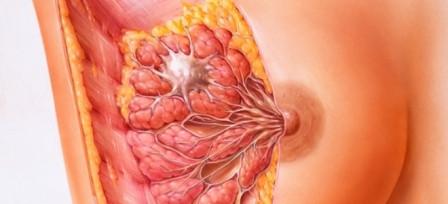 Лечить мастопатию молочных желез