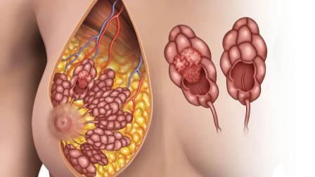 Фиброзная мастопатия молочной железы