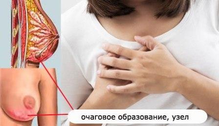 Фиброзно кистозная мастопатия молочной железы