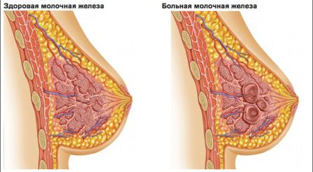 Признаки мастопатии молочной железы
