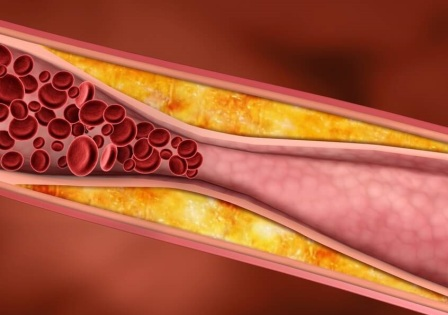 Холестерин в крови у женщин
