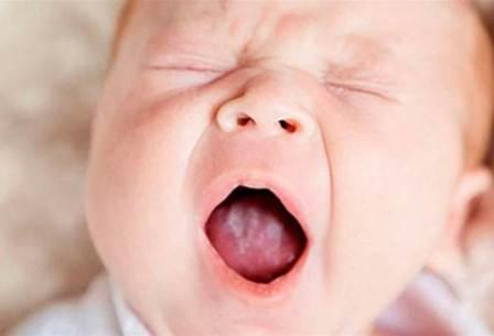 Стоматит у новорожденных