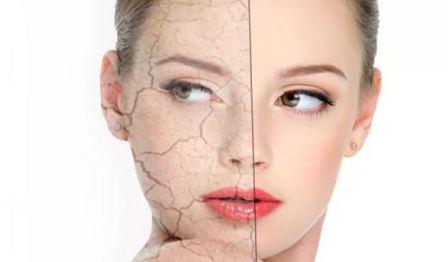Нужен ли увлажняющий крем для лица