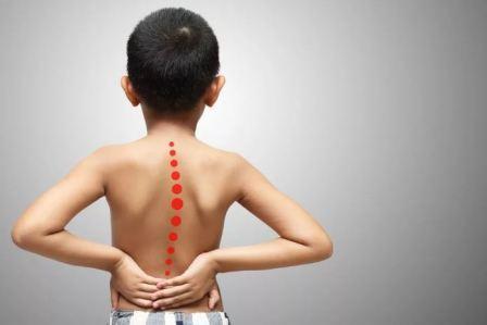 Как исправить сколиоз позвоночника у ребенка