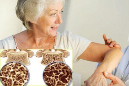 Лучшие препараты для лечения остеопороза у женщин и мужчин