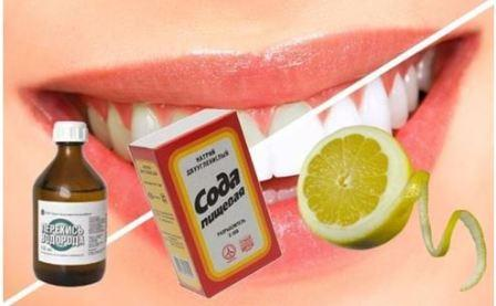 Как самостоятельно отбелить зубы без вреда