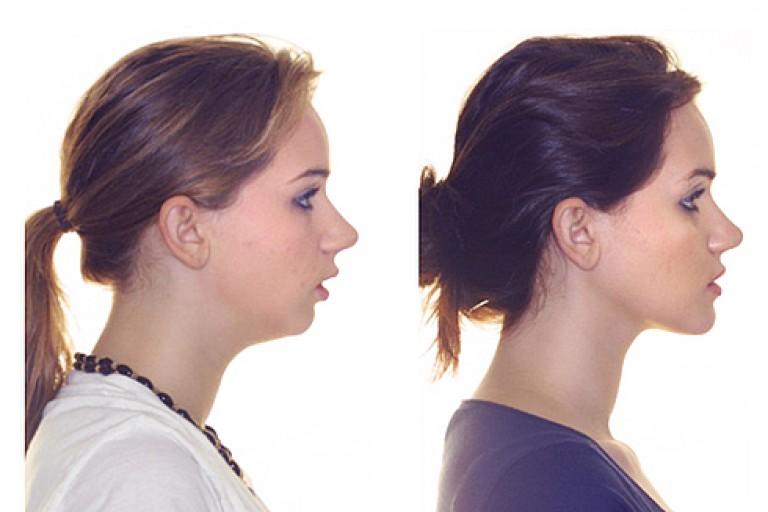 момент брекеты до и после фото профиль годы существования подготовили